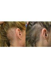 Treatment for Female Pattern Hair Loss - Hair transplant clinic Rubenhair Latvia