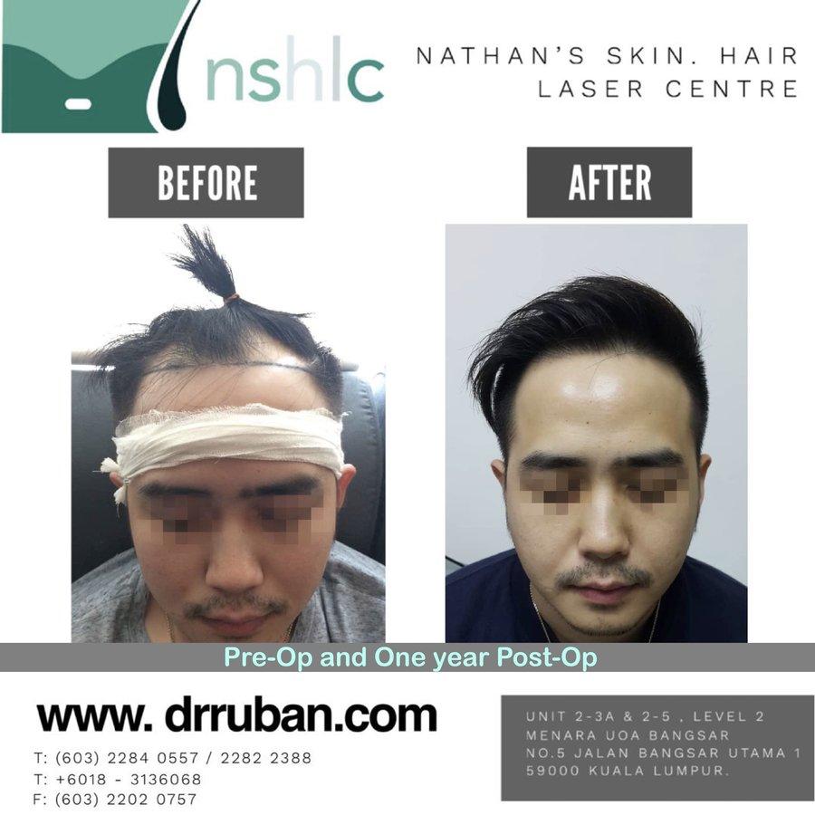 Dr Ruban's Skin & Hair Clinic in Brickfields City, Malaysia