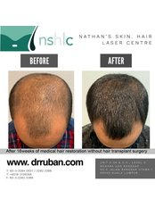 Treatment for Male Pattern Baldness - Dr Ruban's Skin & Hair Clinic