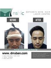 Hair Transplant - Dr Ruban's Skin & Hair Clinic
