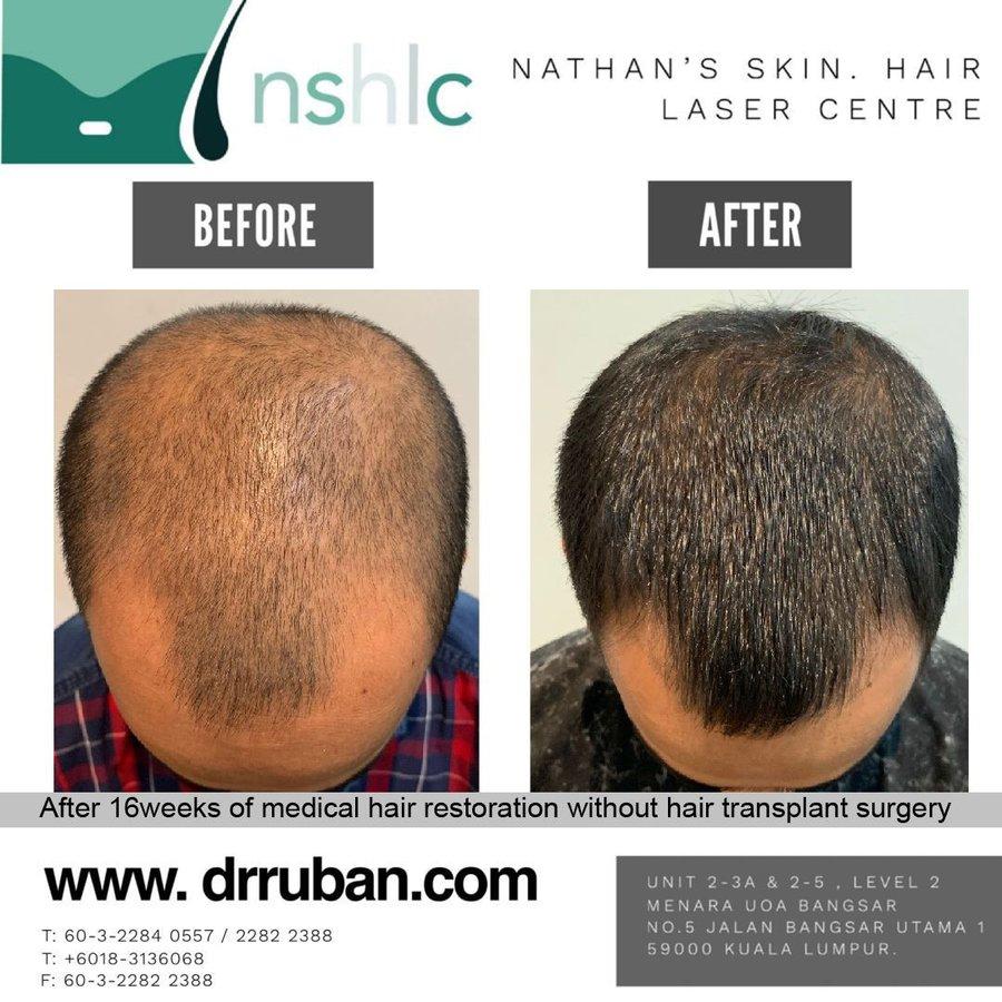 Dr Ruban S Skin Hair Clinic In Kuala Lumpur Malaysia Read 6 Reviews