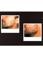 Facial Hair Transplant - DHI-Direct Hair Implantation
