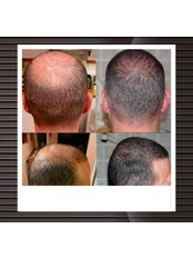 FUE - Follicular Unit Extraction - DHI-Direct Hair Implantation