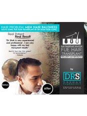 Treatment forMale Pattern Baldness - Dr Shah Hair Clinic