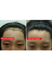 Treatment for Female Pattern Hair Loss - Dr Shah Hair Clinic