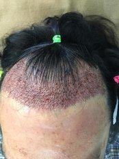 FUE Hair Transplant - Dr Shah Hair Clinic