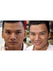 Eyebrow Transplant - Dr Shah Hair Clinic