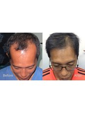 Hair Loss Treatment after Delivery - Dr Shah Hair Clinic