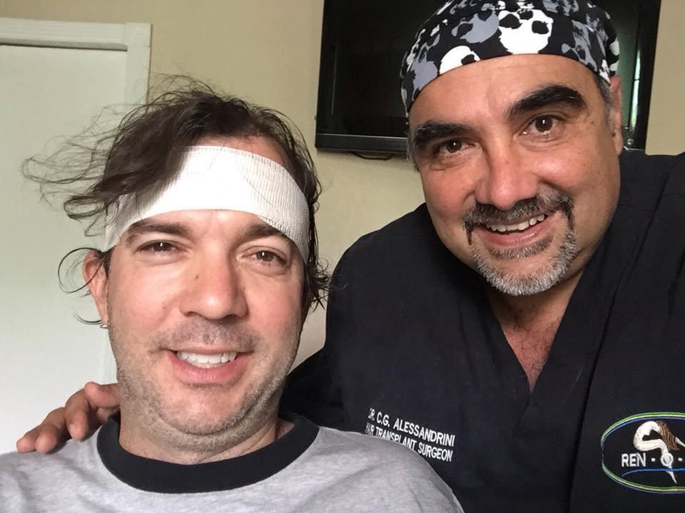 (*) Hair Transplant Mexico