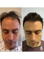 Hair Loss Specialist Treatment FUE - MX Capilar Tijuana