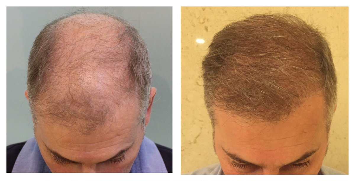 cheap haircut richmond va hair transplant costs in the philippines hair transplant 3821
