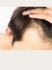 i-Hairmed - Hair line Man