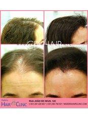Treatment for Female Pattern Hair Loss - Madeira Hair Clinic