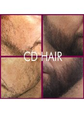 Beard Transplant - Madeira Hair Clinic