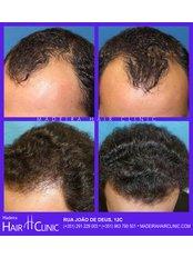 Treatment forMale Pattern Baldness - Madeira Hair Clinic