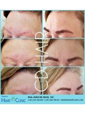Eyebrow Transplant - Madeira Hair Clinic