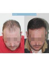 Hair Loss Consultation - 101 Hair Clinic