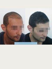 101 Hair Clinic - Golsfordijeva 38, Belgrade, Serbia, 11000,