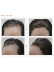 Dr.Ahn Hair Transplant Clinic - Female Hairline correction