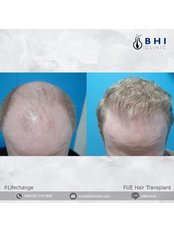 Пересадка волос - Maple Clinic