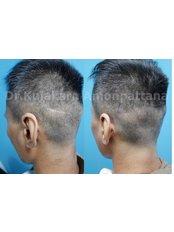 Микропигментация кожи головы - Maple Clinic