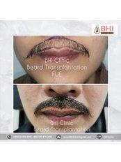 Пересадка волос на бороду - Maple Clinic