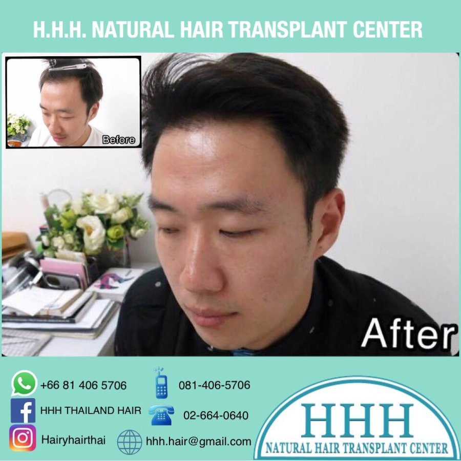 Hhh Natural Hair Transplant Center