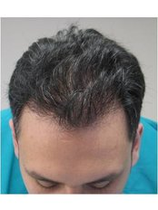 Haartransplantation - Civas Klinik