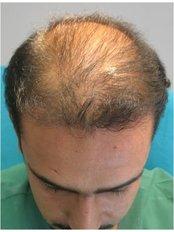 Beratungstermin bei Haarausfall - Civas Klinik