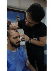 Hair Loss Specialist Consultation - American Aesthetic Hospital Hair Transplant