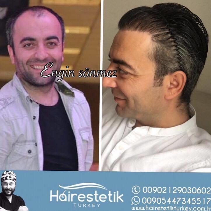 Esthetic Hair Turkey | Hollywood Smile