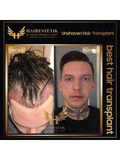 Behandlung von Haarausfall bei Männern - Hairestetik Turkey
