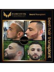 Barttransplantation - Hairestetik Turkey