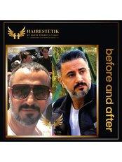 DHI - Direct Hair Implantation - Hairestetik Turkey