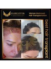 Behandlung von Haarausfall bei Frauen - Hairestetik Turkey