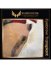 Augenbrauentransplantation - Hairestetik Turkey