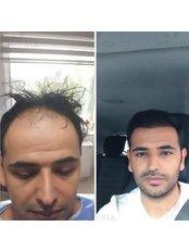 Beard Transplant - Dr Baran Kul - Hair Transplant