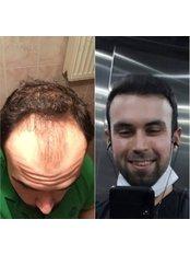 DHI - Direct Hair Implantation - Dr Baran Kul - Hair Transplant