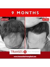 Haartransplantation - TRANSES Klinik für Haartransplantationen