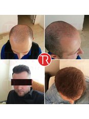 Haarausfall-Behandlung - TRANSES Klinik für Haartransplantationen