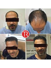 FUE - Follicular Unit Extraction - Transes Hair Transplant