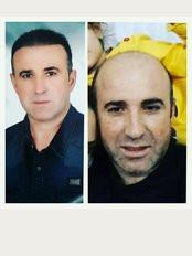 Aslı Tarcan Hair Clinic - Bakırköy, Istanbul,