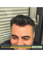 Haartransplantation - Este Prime