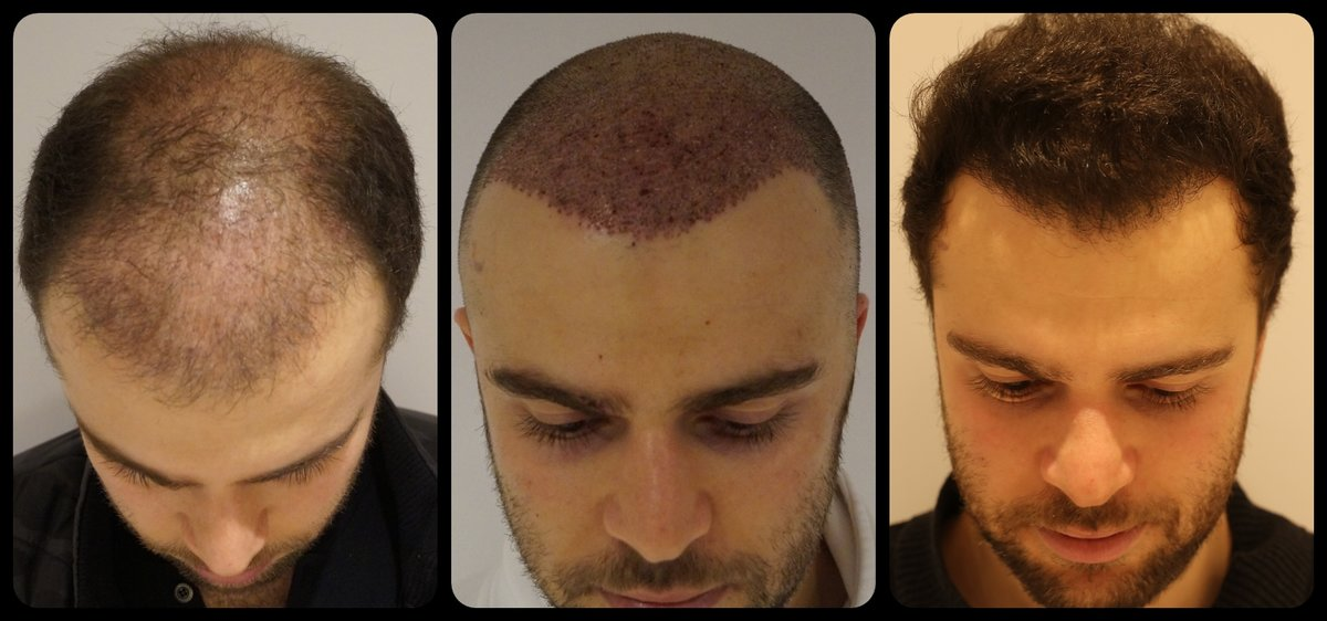 Image result for Best Hair Transplant in Istanbul