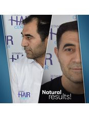 Hair Transplant with FUE Technique - Istanbul Hair Center