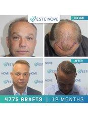 Sapphire FUE Hair Transplant - EsteNove Hair Transplant Clinic Turkey