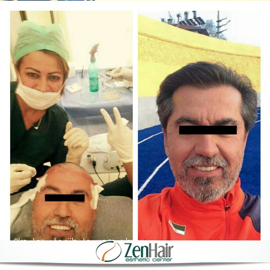 balding hair style zenhair esthetic center in fatih istanbul 1095
