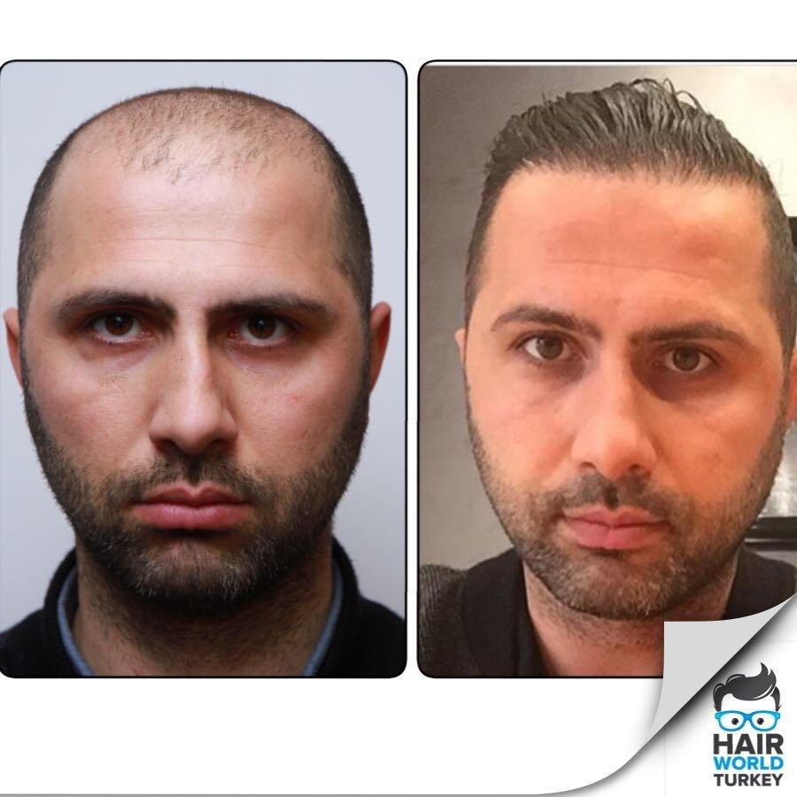 Natural Hair Clinic Istanbul