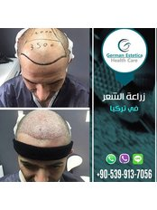 FUE Hair Transplant Turkey İstanbul - German Estetica