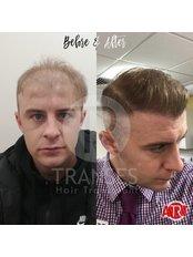 Sapphire F.U.E. Hair Transplant - Transes Hair Transplant
